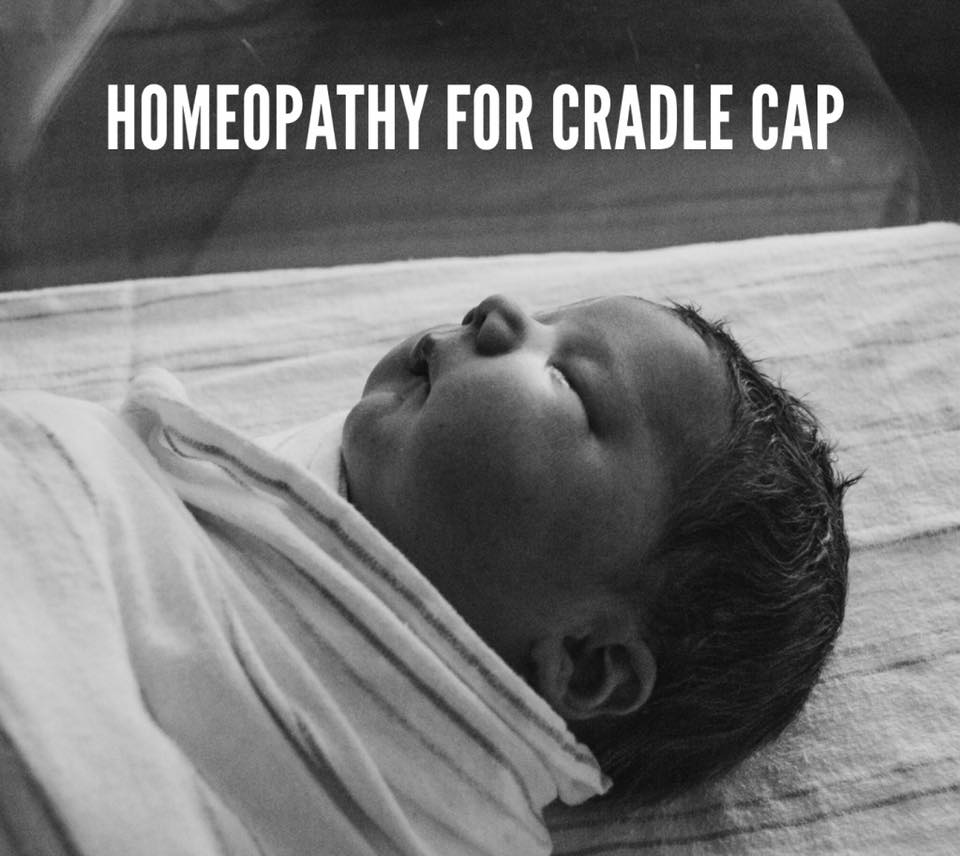 Homeopathy helps with Seborrheic Dermatitis