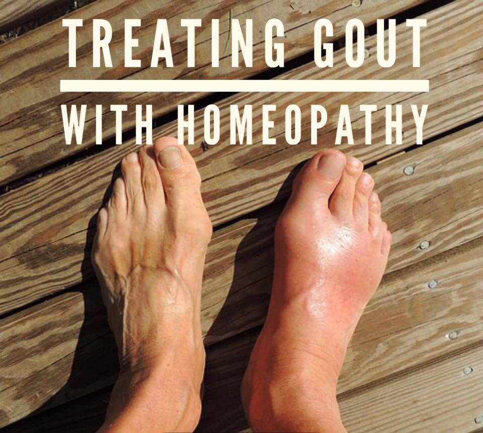 Gout and Homeopathic Approach
