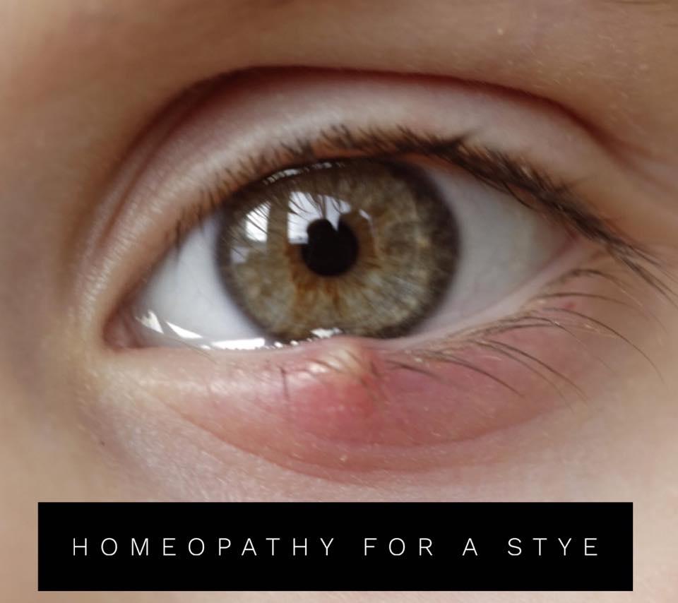Helpful Remedies for the Stye