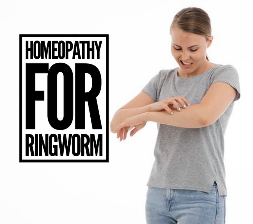 Ringworm (tinea)