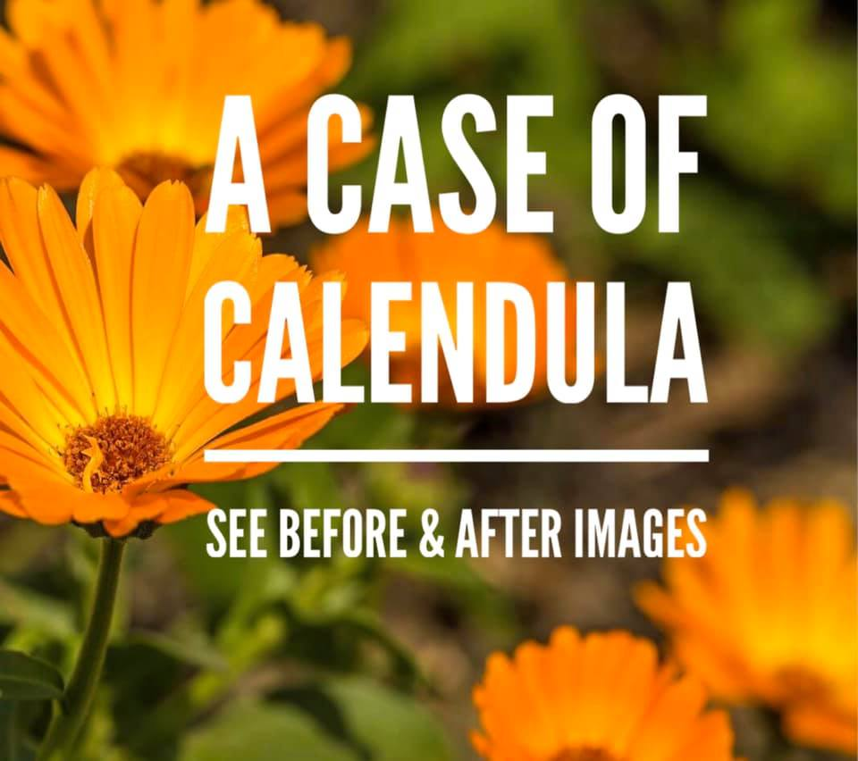 A Case of Calendula
